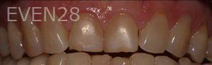 Joyce-Kahng-Porcelain-Veneers-before-2