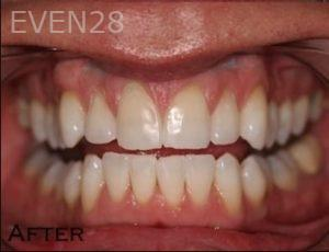 Joyce-Kahng-Teeth-Whitening-after-1