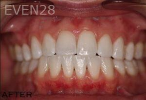 Joyce-Kahng-Teeth-Whitening-after-2