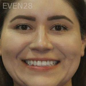 Mark-Nguyen-Invisalign-clear-aligners-after-10