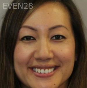 Mark-Nguyen-Invisalign-clear-aligners-after-11