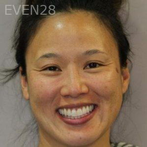 Mark-Nguyen-Invisalign-clear-aligners-after-2