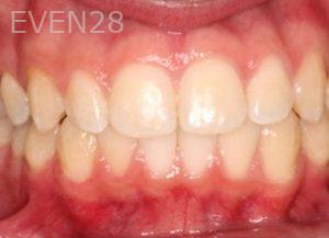 Mark-Nguyen-Invisalign-clear-aligners-after-3b