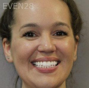 Mark-Nguyen-Invisalign-clear-aligners-after-4