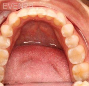 Mark-Nguyen-Invisalign-clear-aligners-after-5b