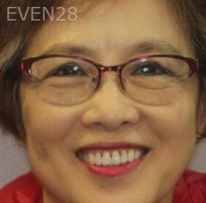 Mark-Nguyen-Invisalign-clear-aligners-after-8