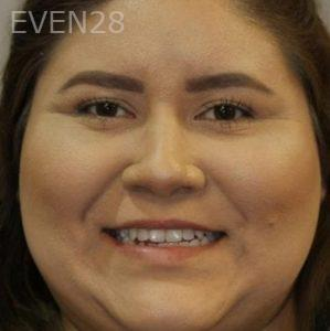 Mark-Nguyen-Invisalign-clear-aligners-before-10-1