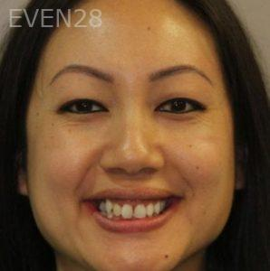 Mark-Nguyen-Invisalign-clear-aligners-before-11