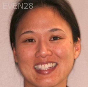 Mark-Nguyen-Invisalign-clear-aligners-before-2