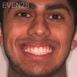 Mark-Nguyen-Invisalign-clear-aligners-before-3