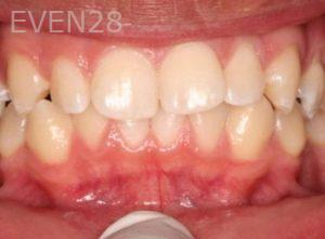 Mark-Nguyen-Invisalign-clear-aligners-before-3b