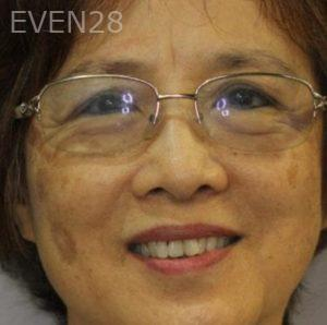 Mark-Nguyen-Invisalign-clear-aligners-before-8