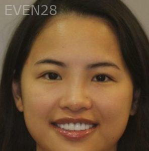 Mark-Nguyen-Porcelain-Veneers-after-3