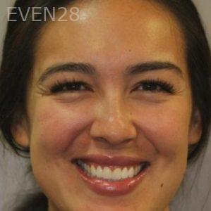 Mark-Nguyen-Porcelain-Veneers-after-4
