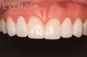 Mark-Nguyen-Porcelain-Veneers-after-4b