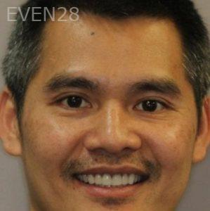 Mark-Nguyen-Porcelain-Veneers-after-9