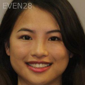 Mark-Nguyen-Porcelain-Veneers-before-3
