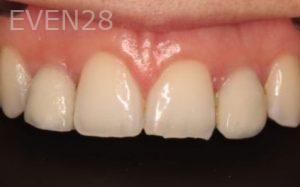 Mark-Nguyen-Porcelain-Veneers-before-4b