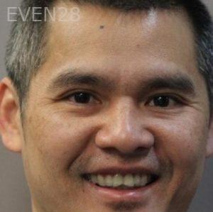 Mark-Nguyen-Porcelain-Veneers-before-9