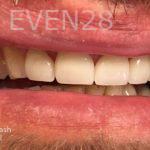 Mojgan-Niktash-Full-Mouth-Reconstruction-after-1