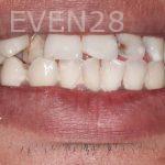 Ramin-Khoshsar-Smile-Makeover-Before-1