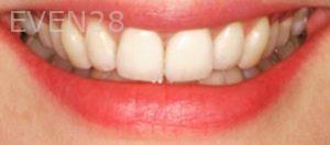 Sean-Pierce-Dental-Implant-After-1