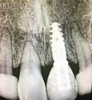 Sean-Pierce-Dental-Implant-After-1b