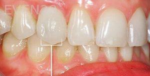 Sean-Pierce-Dental-Implant-After-2