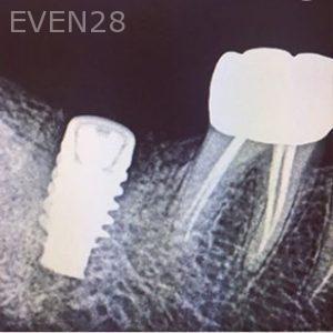 Sean-Pierce-Dental-Implant-After-4