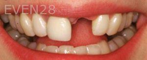 Sean-Pierce-Dental-Implant-Before-1