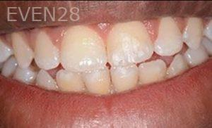 Soraya-Mahran-Dental-Bonding-after-1