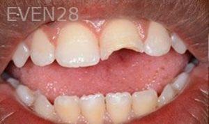 Soraya-Mahran-Dental-Bonding-before-1