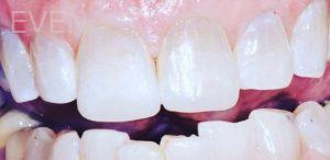 Soraya-Mahran-Dental-Crowns-after-1