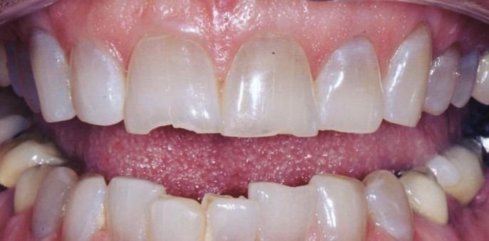 Soraya-Mahran-Dental-Crowns-before-1