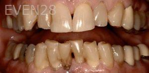 Soraya-Mahran-Full-Mouth-Reconstruction-before-2