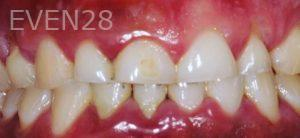 Soraya-Mahran-Full-Mouth-Reconstruction-before-3