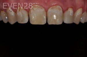 Aria-Irvani-Dental-Bonding-before-2
