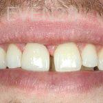 Ahmad-Aghakhan-Moheb-Dr-Sasha-Dental-Crowns-after-2
