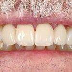 Ahmad-Aghakhan-Moheb-Dr-Sasha-Dental-Crowns-after-5