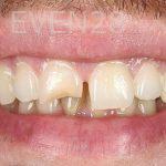 Ahmad-Aghakhan-Moheb-Dr-Sasha-Dental-Crowns-before-2