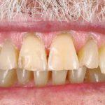Ahmad-Aghakhan-Moheb-Dr-Sasha-Dental-Crowns-before-5