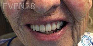 Andrew-Finley-All-on-Four-Dental-Implants-after-1