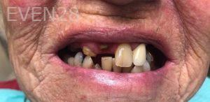 Andrew-Finley-All-on-Four-Dental-Implants-before-1