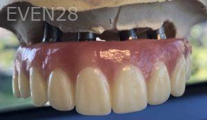 Andrew-Finley-All-on-Four-Dental-Implants-before-1b