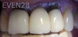 Andrew-Finley-Dental-Bridge-before-1