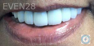 Andrew-Finley-Dental-Crowns-after-2