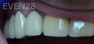 Andrew-Finley-Dental-Crowns-after-3