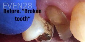 Andrew-Finley-Dental-Crowns-before-1