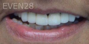 Andrew-Finley-Dental-Crowns-before-2