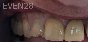 Andrew-Finley-Dental-Crowns-before-3